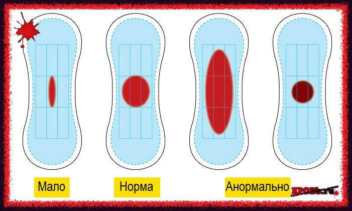 Обильное кровотечение при месячных - Лечение кровотечений